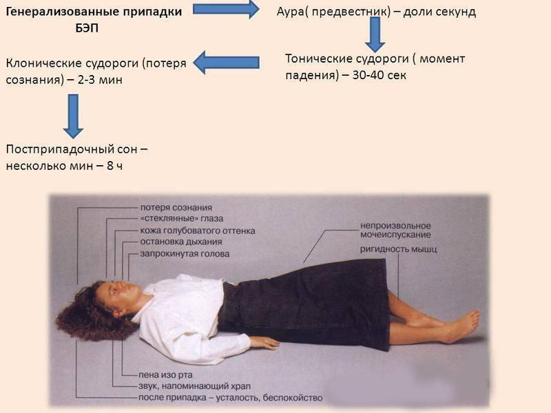 Алкогольная эпилепсия: причины, симптомы и восстановление организма