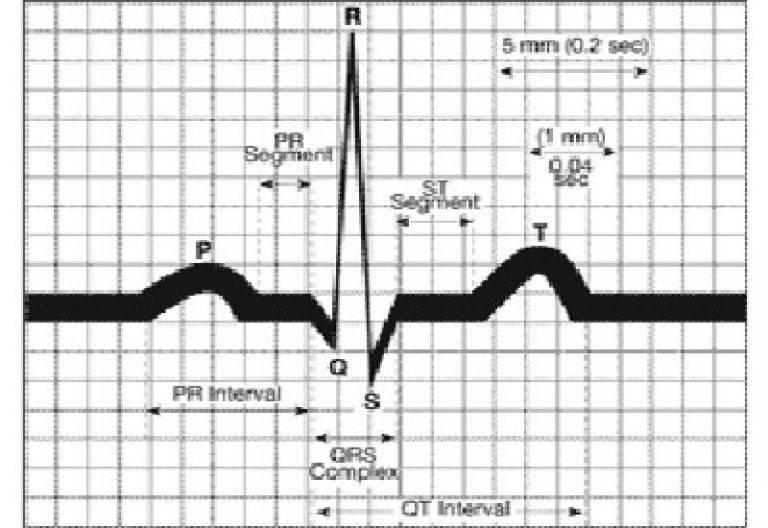 Синусовый ритм на экг: что это такое, нормы и виды отклонений, дополнительная диагностика и методы лечения