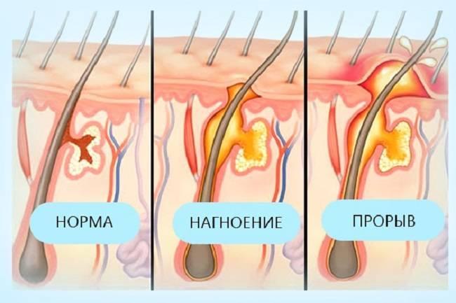 Образование чирей под мышкой: причины нарыва, лечение подмышечных фурункулов в домашних условиях