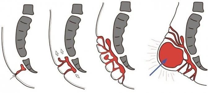 Эпителиальный копчиковый ход заболевания