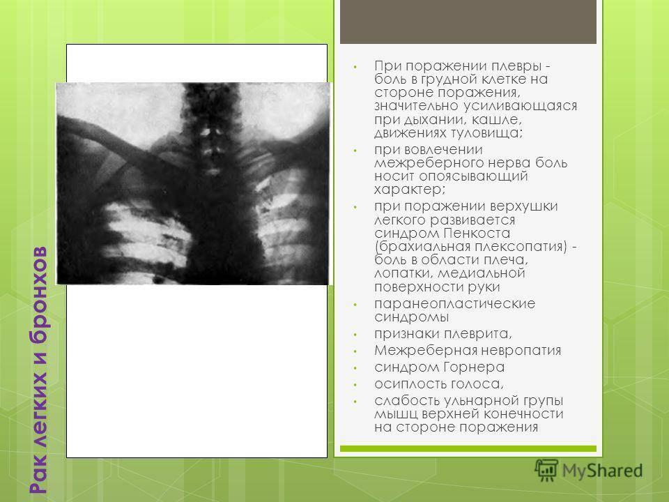 Боль в грудине справа: причины. почему болит в правой части грудной клетки