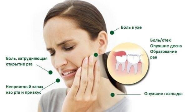 Народные средства и методы для устранения зубной боли в домашних условиях