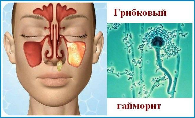Хронический синусит: лечение, причины и симптомы