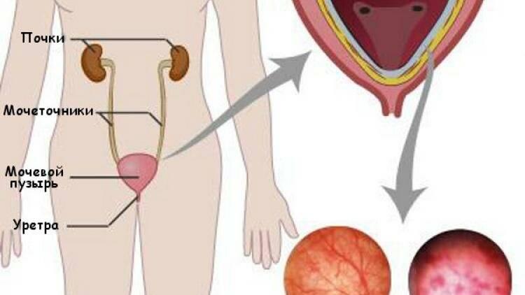 Может ли заболеть женщина простатитом какие свечи лучшие от простатита