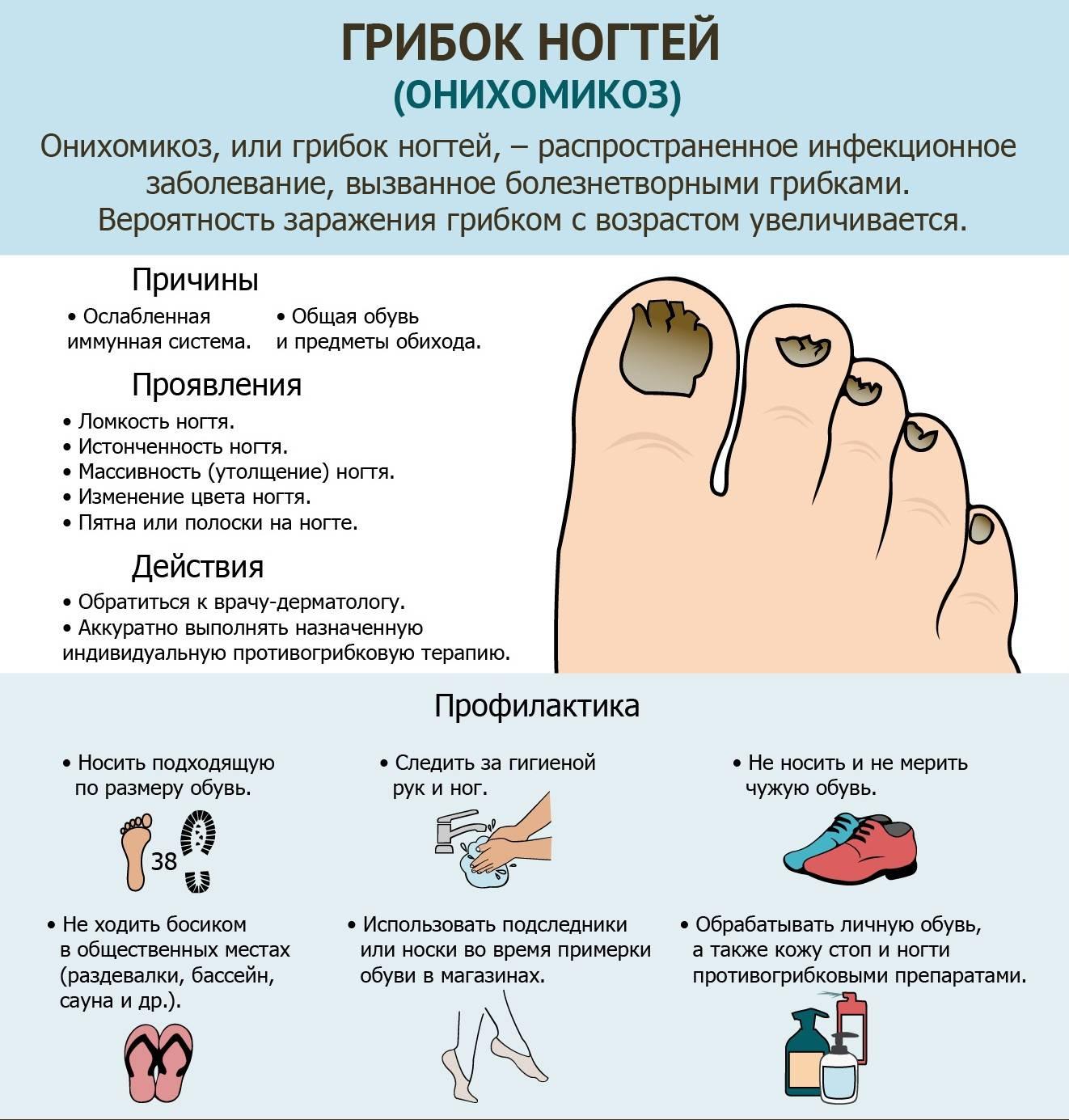 Начальная стадия грибка на ногах: симптомы и средства для лечения