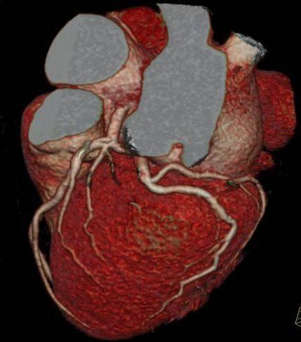 Кт сердца, коронарных артерий и сосудов: ход выполнения, что показывает компьютерная томография, особенности мультиспирального вида