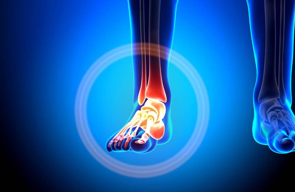 Болит пятка при ходьбе: почему больно наступать и лечение боли