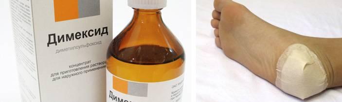 Пяточная шпора лечение народными средствами — йодом