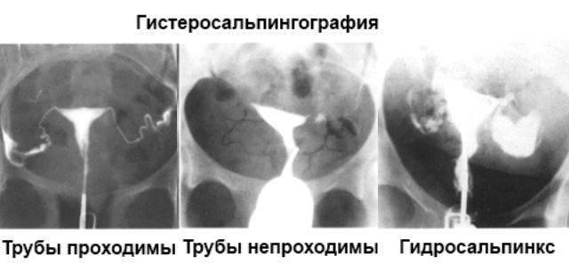 Непроходимость маточных труб. причины, симптомы и признаки, диагностика и лечение болезни :: polismed.com