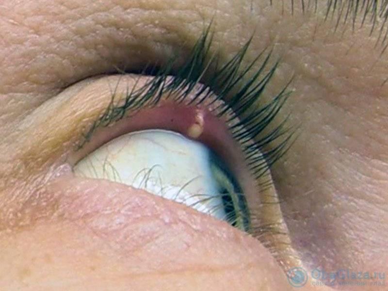 Гнойник на веке глаза - причины, лечение, последствия