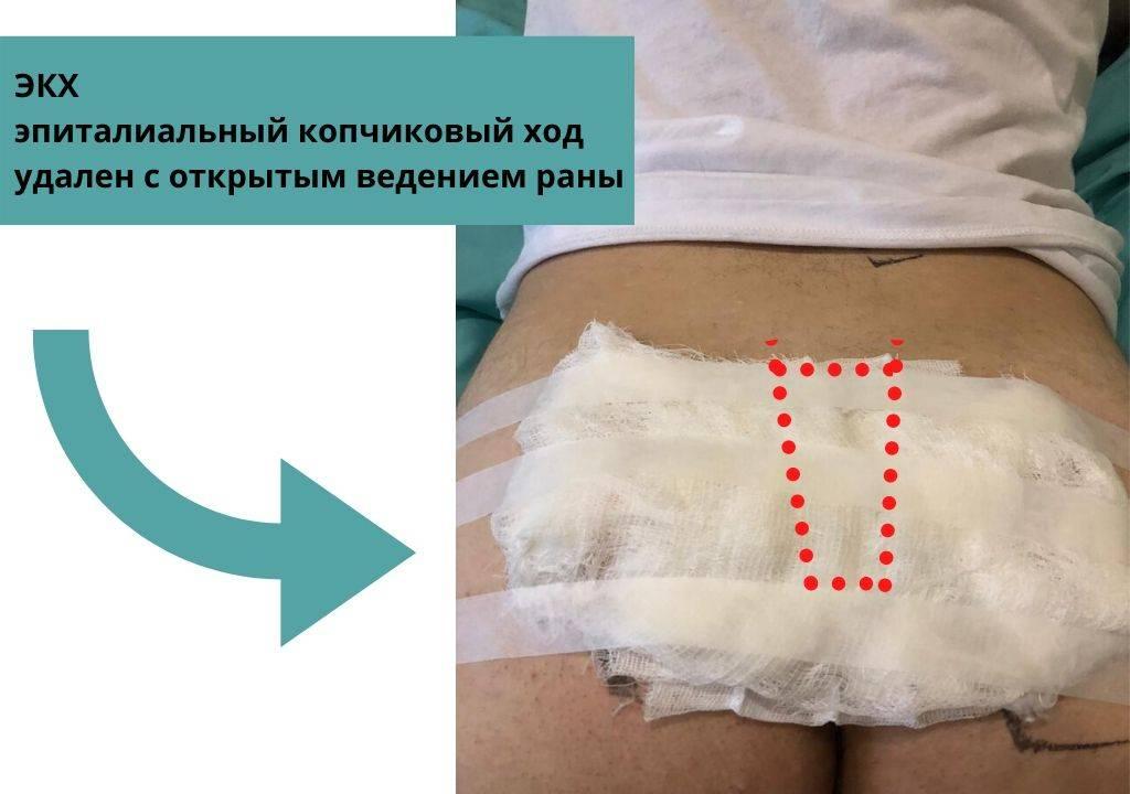 Экх после операции: восстановление пациента, профилактика рецидива | атлантик