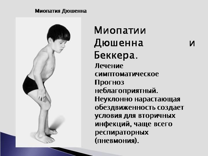 Миопатия у детей - лечение, причины и симптомы миопатии | детская неврология см-клиники в санкт-петербурге