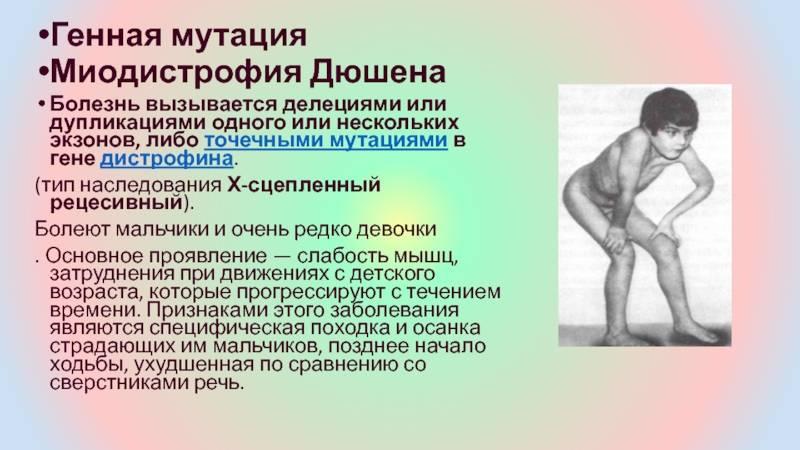 Миопатия дюшена. что это такое, симптомы у детей, взрослых, лечение