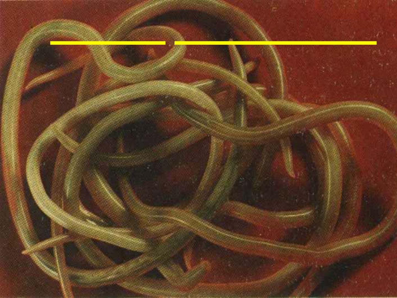 Гельминтоз у взрослых: симптомы и лечение, признаки, как лечить, виды и классификация