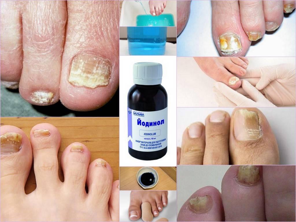 Лекарство от грибка ногтей на ногах: что лучше лечит, список самых эффективных препаратов