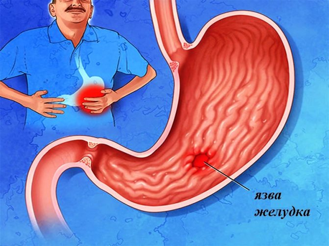Желудочно-кишечное кровотечение и первая помощь при возникновении