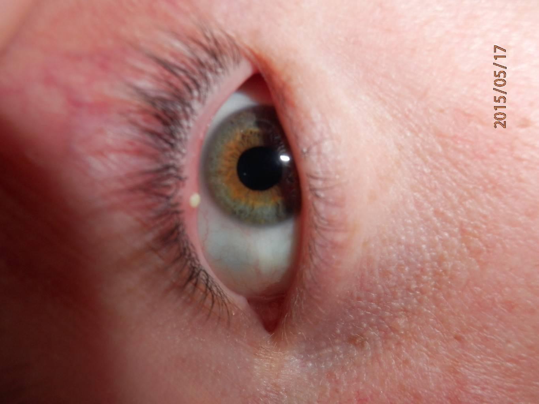 Внутри глаза белый прыщик | лечение глаз