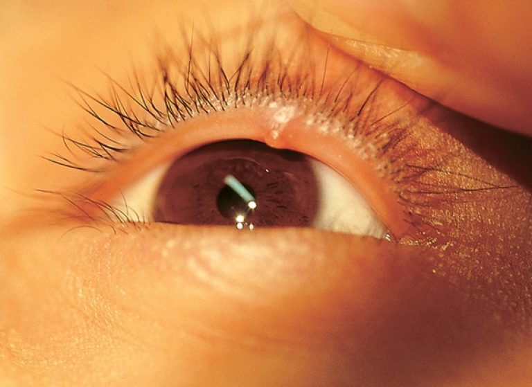 Прыщ на глазу на верхнем веке: его причины и методы лечения