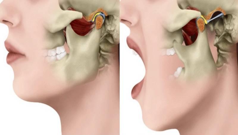 Почему сводит скулы. почему сводит челюсть и какие методы лечения и профилактики существуют