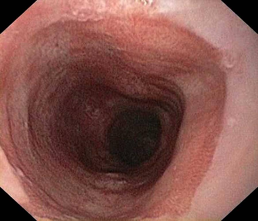 Эрозивный рефлюкс-эзофагит: симптомы и лечение