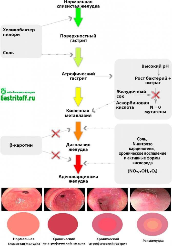 Симптомы и признаки гастрита. как определить, есть ли у вас гастрит?