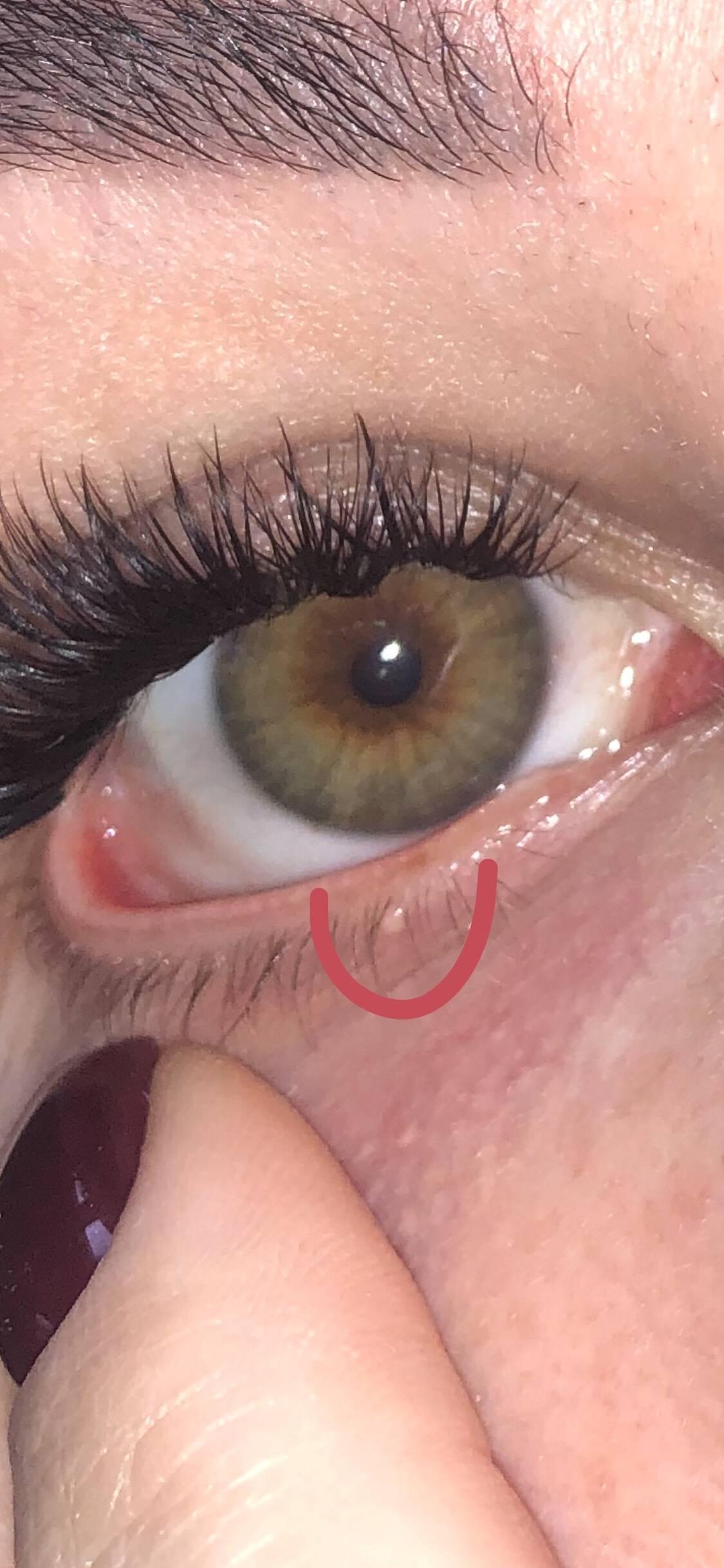 Прыщ на веке глаза внутри, причины появление на внутренней стороне