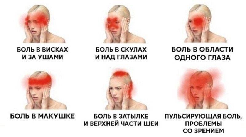 Болит голова в висках и давит на глаза и тошнит что выпить