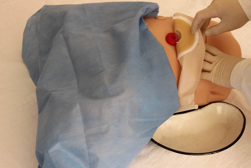 Обучение пациента уходу за стомой.
