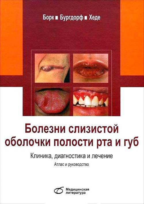 Болезни слизистой оболочки полости рта у детей: причины, профилактика и лечение