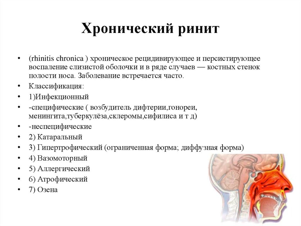 Хронический синусит симптомы и лечение у взрослых народными средствами