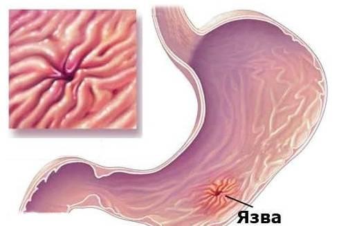Неотложная помощь при желудочно-кишечном кровотечении
