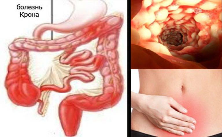 Расстройства кишечника при простатите бактериальный простатит курс антибиотиков