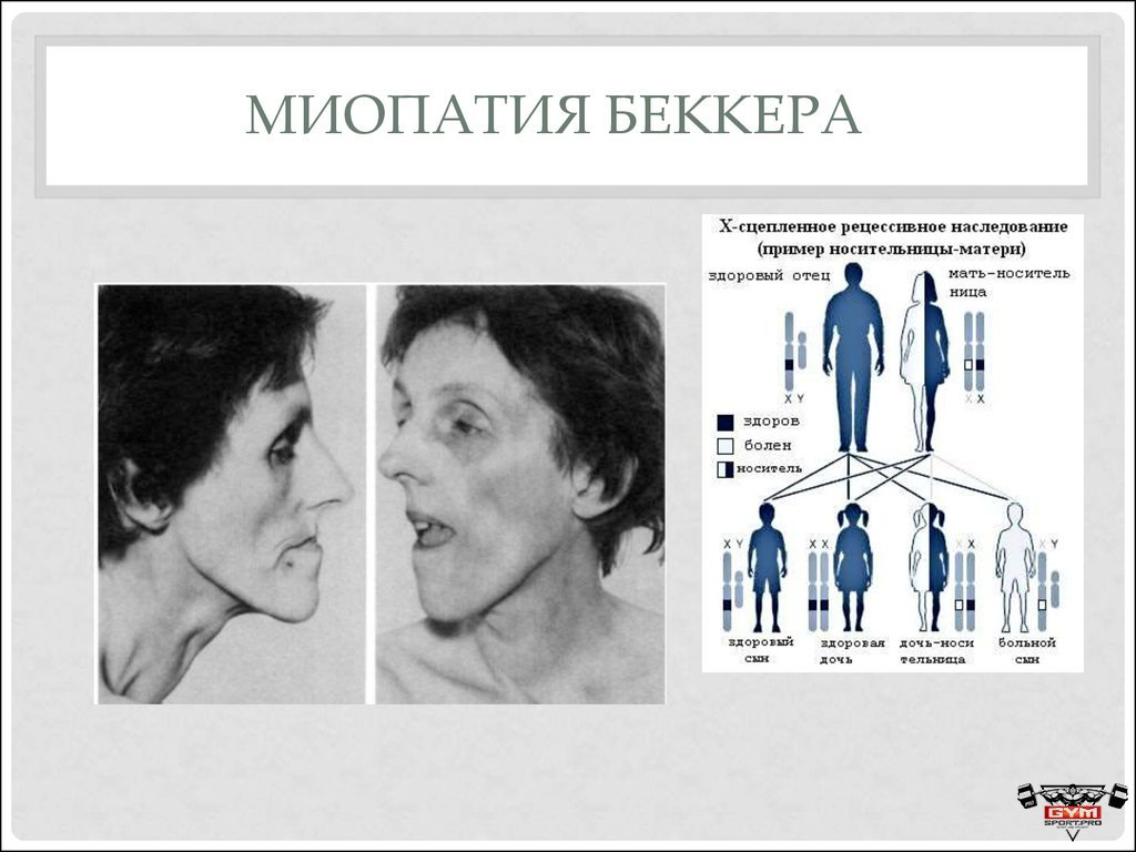 Что такое миопатия дюшенна