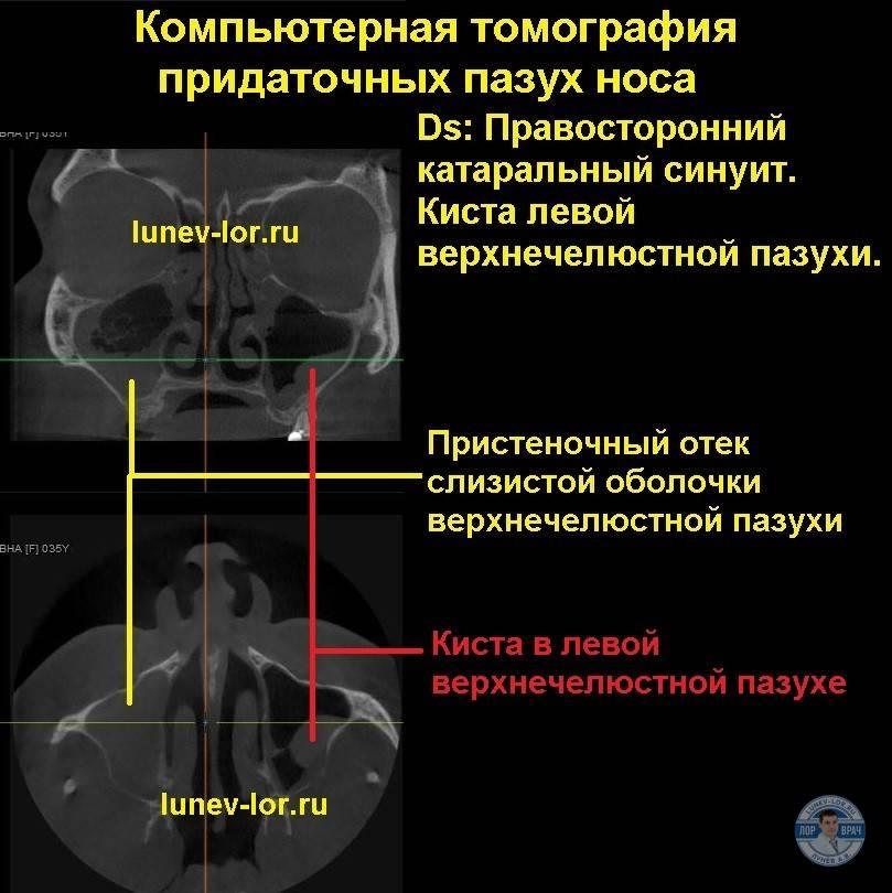 Мрт носа и околоносовых пазух: что показывает и как проводится, стоимость