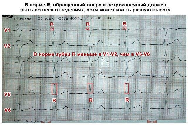 Расшифровка кардиограммы сердца ритм синусовый – что это?