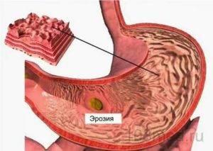 Как принимать кардиомагнил при эрозивном гастрите