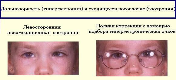 Скрытое косоглазие: причины, симптомы и методы лечения