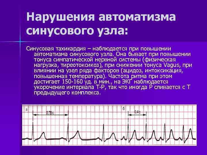 Нарушение и замедление внутрипредсердной проводимости: причины, симптомы и степени, лечение и прогноз жизни