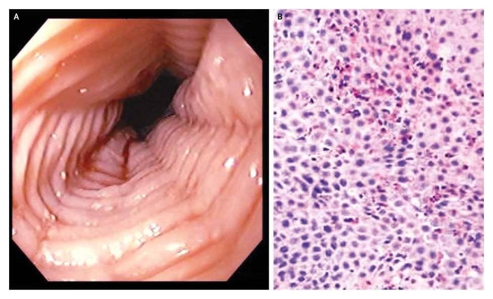 Эрозивный рефлюкс-эзофагит в дистальной, острой, хронической, поверхнростной и язвенной формах: симптомы и лечение