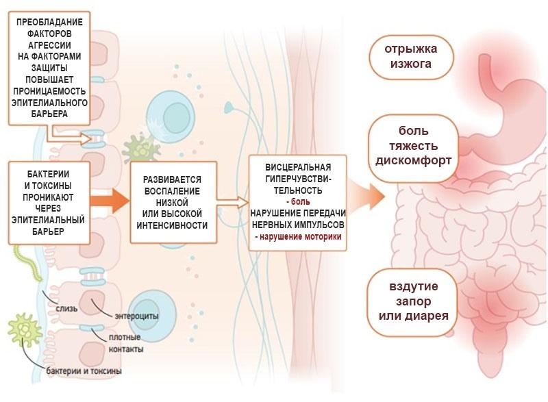 Аутоиммунный гастрит: этиология, симптомы, лечение - я здоров