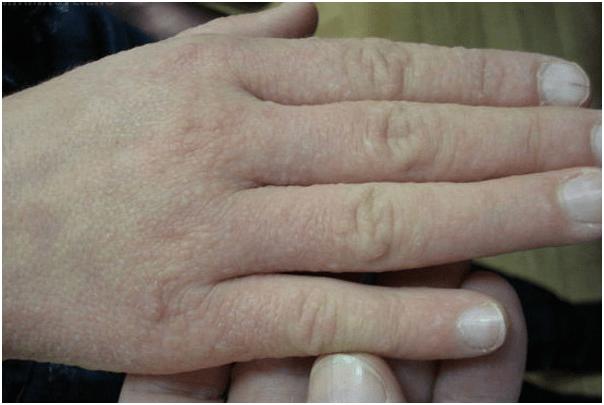 Водянистые прыщики на руках: причины появления, в чем опасность и как бороться