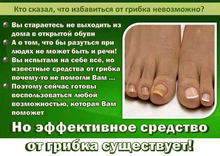 Грибок ногтей: лечение в домашних условиях и препаратами
