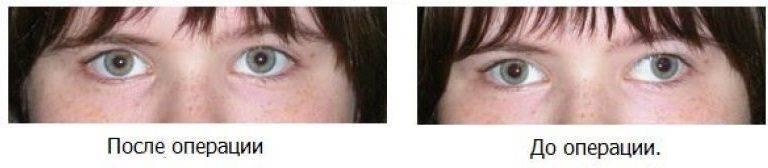 Скрытое косоглазие, причины, симптомы, способы терапии патологии