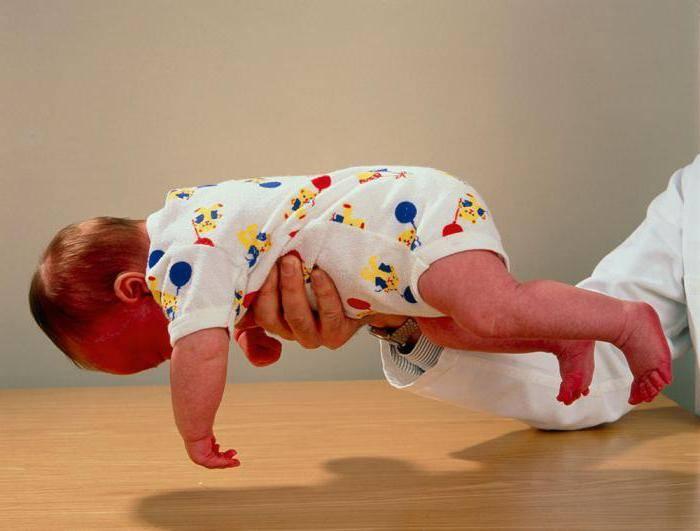 Гипертонус и гипотонус мышц у младенцев: в чем опасность