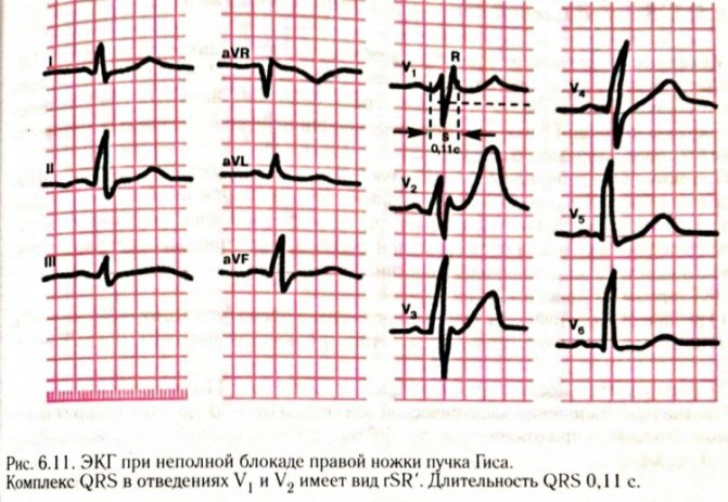 Нарушение внутрижелудочковой проводимости сердца: что это такое?