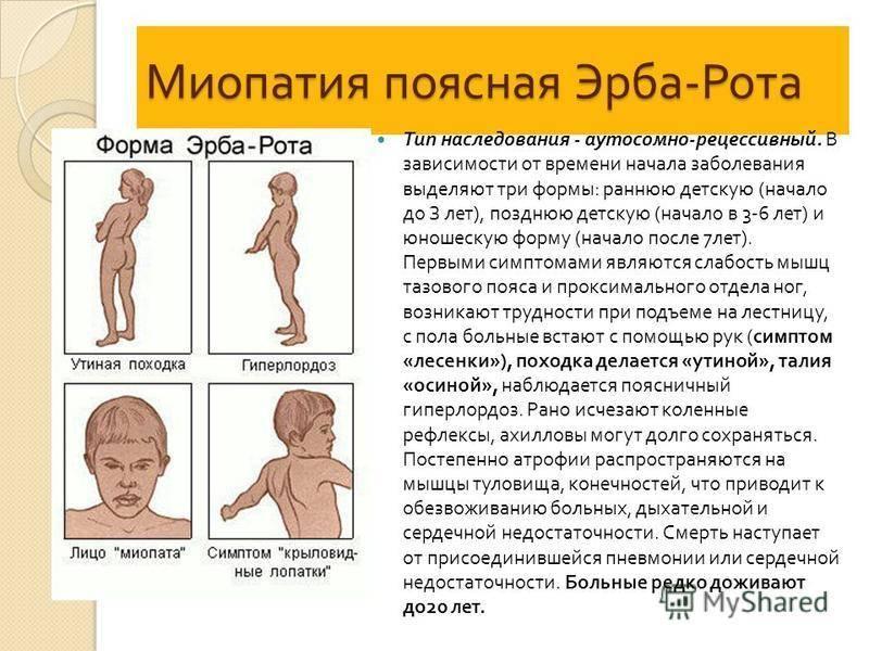 Что такое миопатия дюшенна?