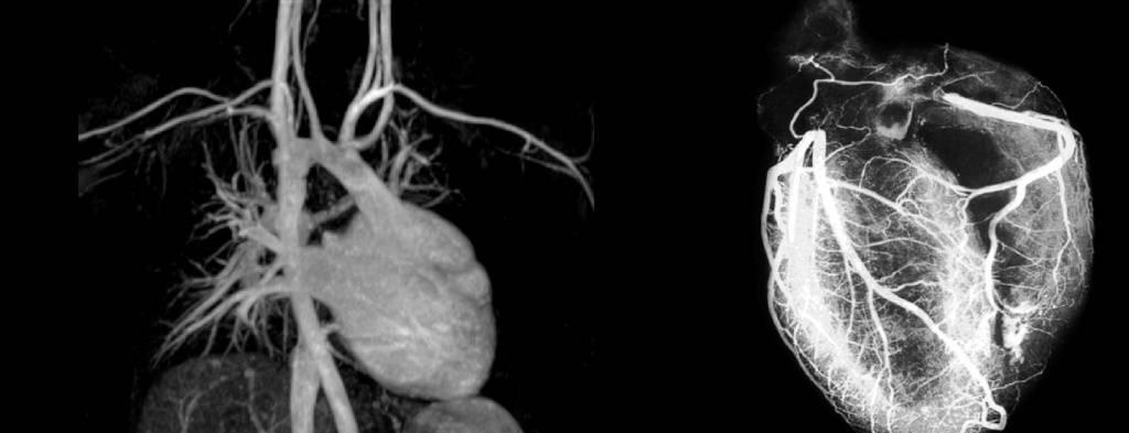 Кт-коронарография сосудов сердца: описание, исследования, показания и противопоказания, отзывы
