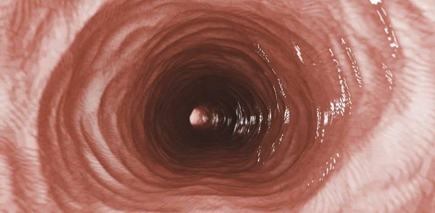 Что такое рефлюкс эзофагит: симптомы и причины, диагностика и лечение, профилактика