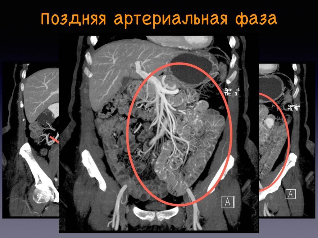 Подготовка к кт брюшной полости с контрастом: особености подготовки к компьютерной томографии или мскт живота, диета, противопоказания