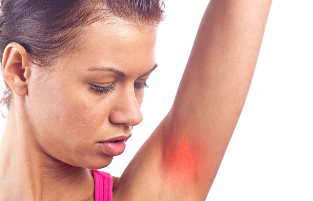 Фурункул под мышкой — причины, симптомы и лечение в домашних условиях